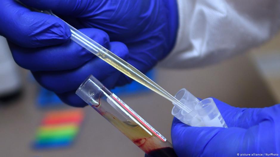 Путин объявил о регистрации в РФ вакцины вопреки мнению экспертов