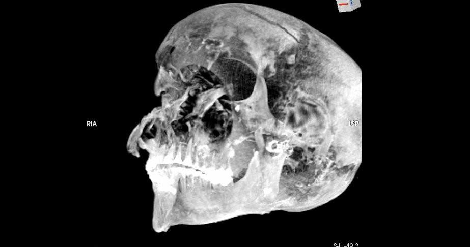 Компьютерные технологии раскрыли тайну смерти фараона