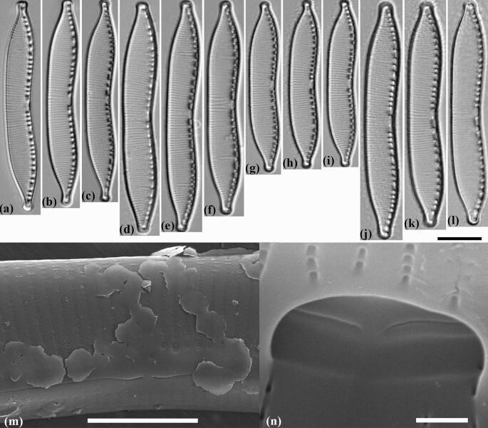 Ученые обнаружили пять видов диатомовых водорослей, ранее неизвестных науке