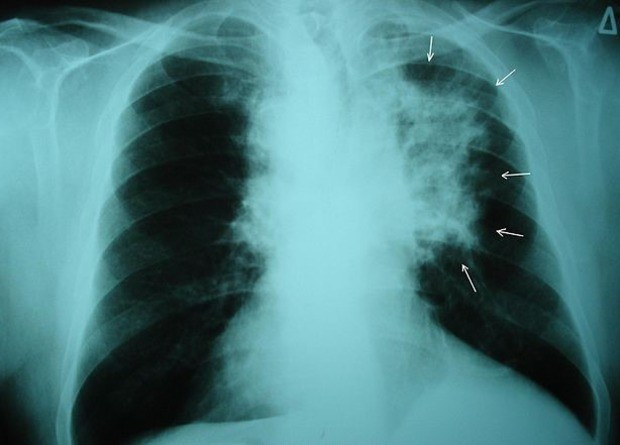 Скрининг снизил смертность от рака легких на 16 процентов