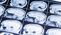 Черепно-мозговые травмы оказались опаснее, чем считалось