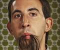 Врачи описали редкий случай роста волос внутри человеческого рта