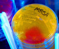 Найден потенциальный антибиотик нового поколения