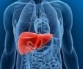 Врачи рассказали о неочевидном симптоме рака печени